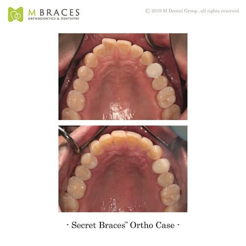 Dental Case Format (10)