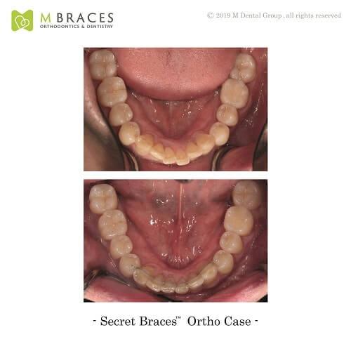 Dental Case Format (11)