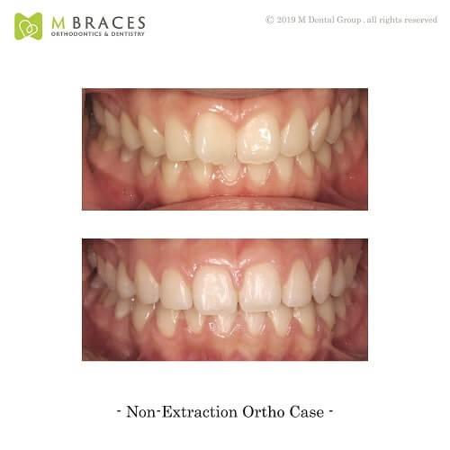 Dental Case Format (3)
