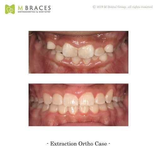 Dental Case Format (6)