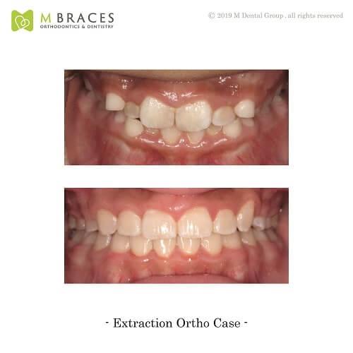 Dental Case Format (6)