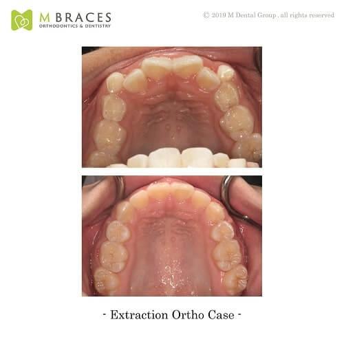 Dental Case Format (7)