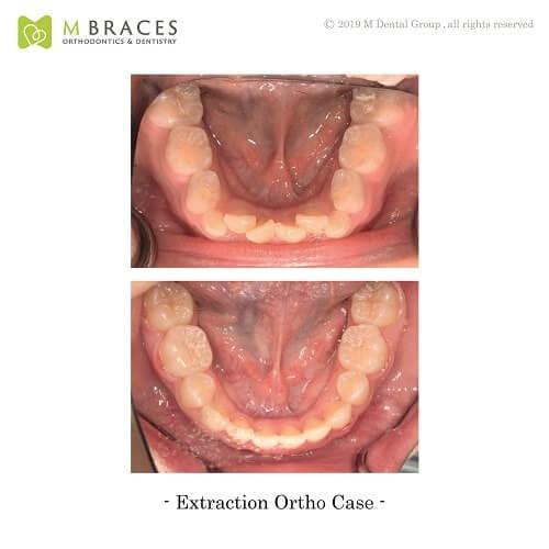 Dental Case Format (8)