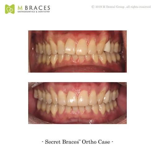 Dental Case Format (9)